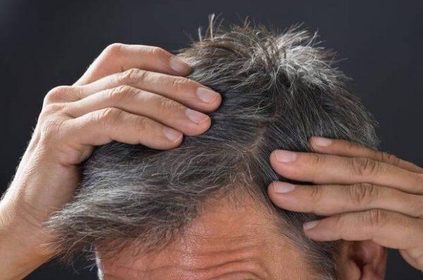 استرس و سفید شدن مو